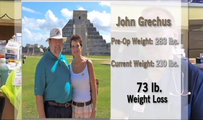 Grechus Mini-Gastric Bypass