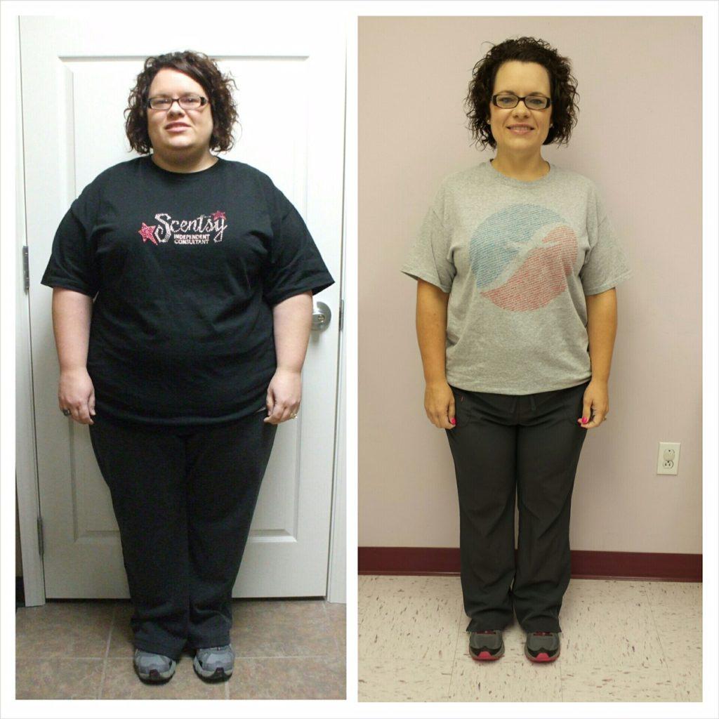 Joplin Bariatric Surgery Diabetes Gastric Bypass Weight Loss