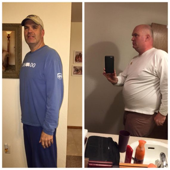Mark Joyner Before & After Mini-Gastric Bypass
