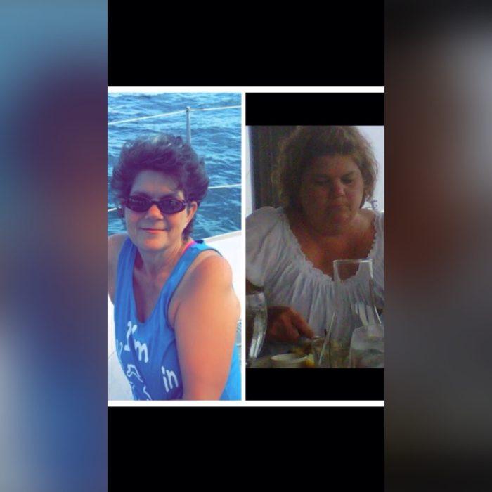 Rose Pelak Before & After Mini-Gastric Bypass